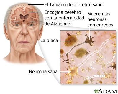 alzheimer y incontinencia