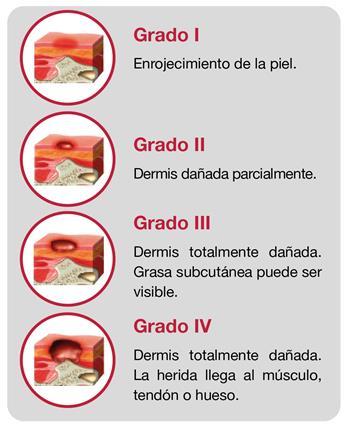 Información, Úlceras por Presión Apex Medical