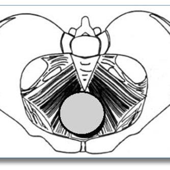 pesario anillo-grueso-asister