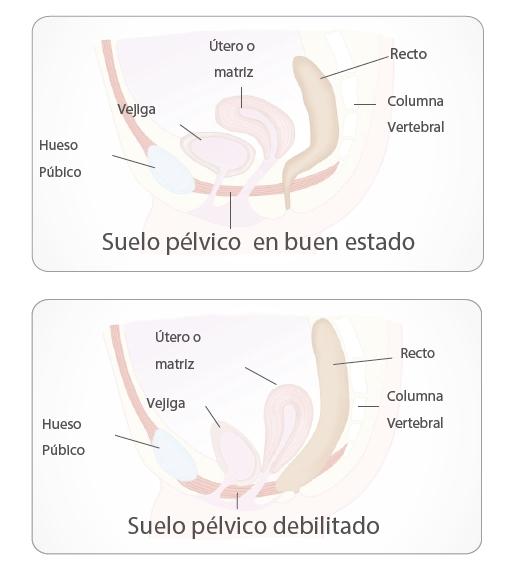 pelvix concept