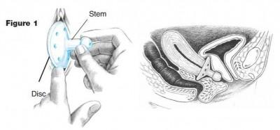 soporte para prolapso uterino