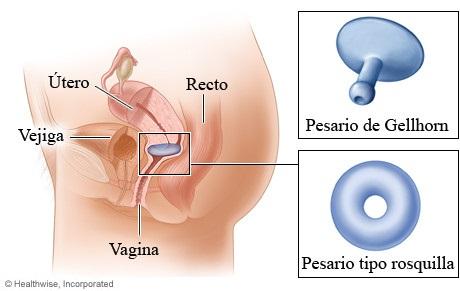 Gellhorn Pesario