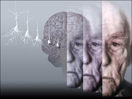 Alzheimer: La Distorsión del Tiempo