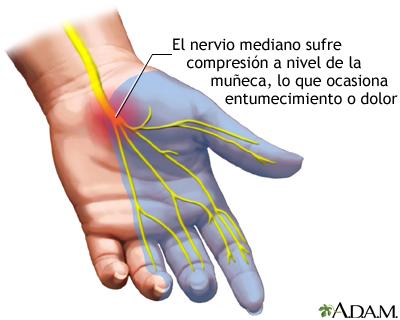 Artículos Ortopédicos y de Soporte