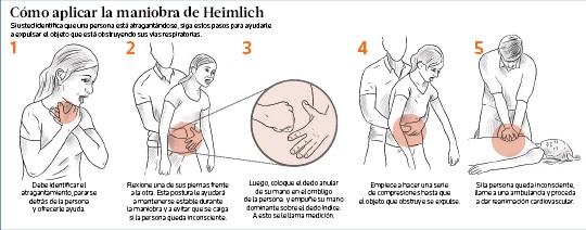 cómo se realiza la maniobra de heimlich